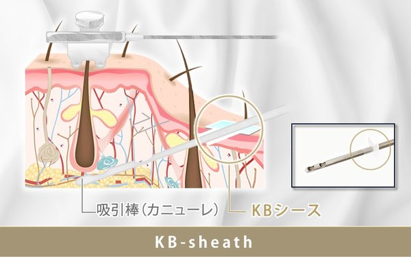 KB-sheath